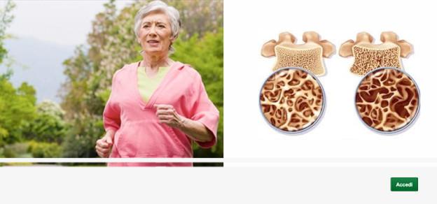 L'osteoporosi, Mineralometria, Ossea, Computerizzata